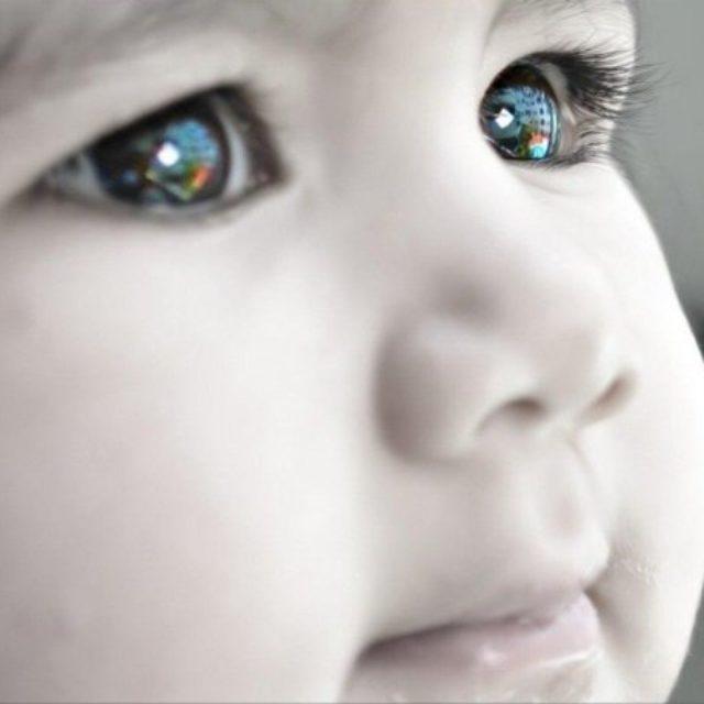 Довгострокові результати первинної імплантації ІОЛ при вродженій катаракті