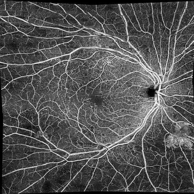 ОКТ-ангіографія: чи є зміни у вимірюваннях після операції з приводу косоокості?