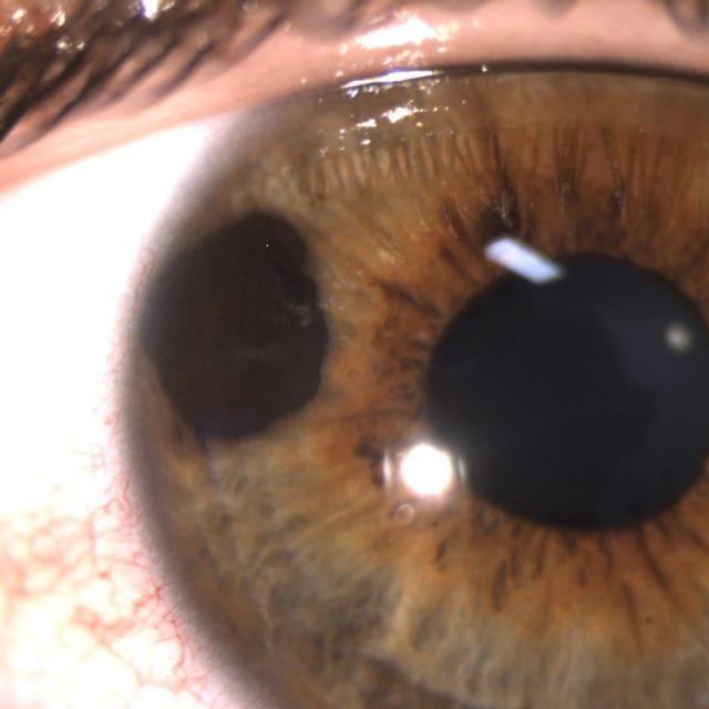 Пембролізумаб як перша лінія терапії метастатичної увеальної меланоми