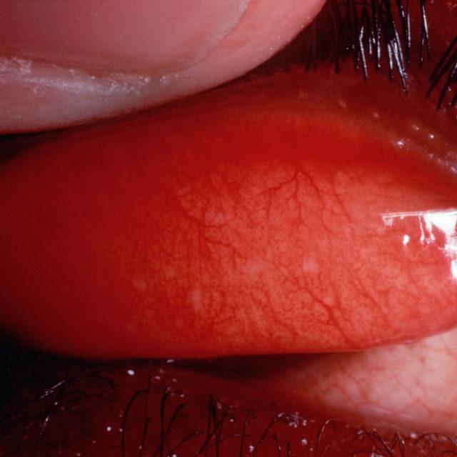 Частота уражень очей хламідіями підвищується після припинення масового використання азитроміцину