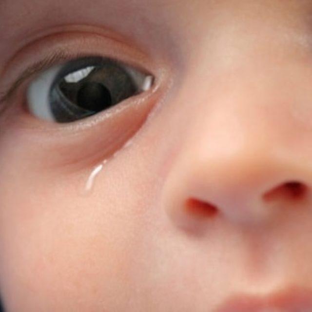 Фактори ризику низької ефективності хірургічного лікування обструкції нососльозового каналу у дітей
