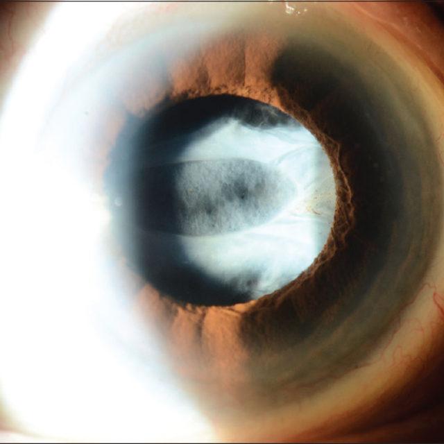 Декілька факторів, які слід враховувати при лікуванні увеальної катаракти у дітей