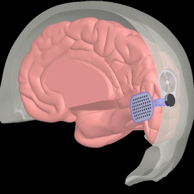 Сліпим пацієнтам, яким було встановлено кортикальний протез Orion, повідомили про функціональні покращення