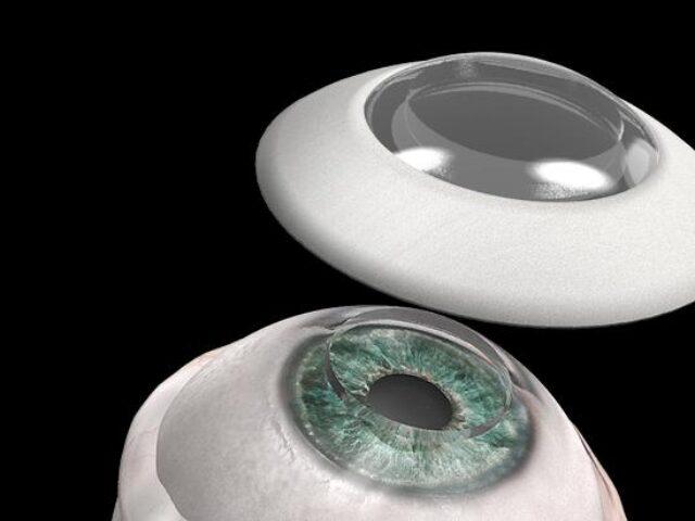 Синтетична рогівка CorNeat KPro отримала дозвіл на першу імплантацію в око людини
