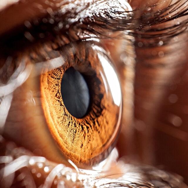 Проліферативний статус водянистої вологи у очах із вродженою катарактою