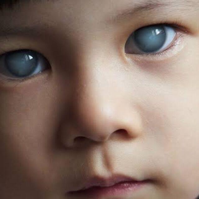 Клінічна характеристика та прогностичні фактори якості зору при дитячій глаукомі