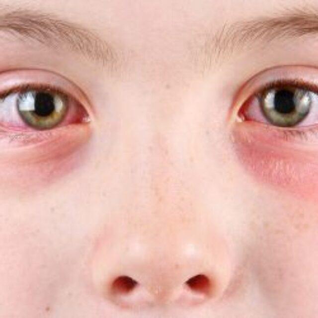 Майже у чверті дітей з Китаю, які були госпіталізовані із COVID-19, розвивались симптоми ураження очей
