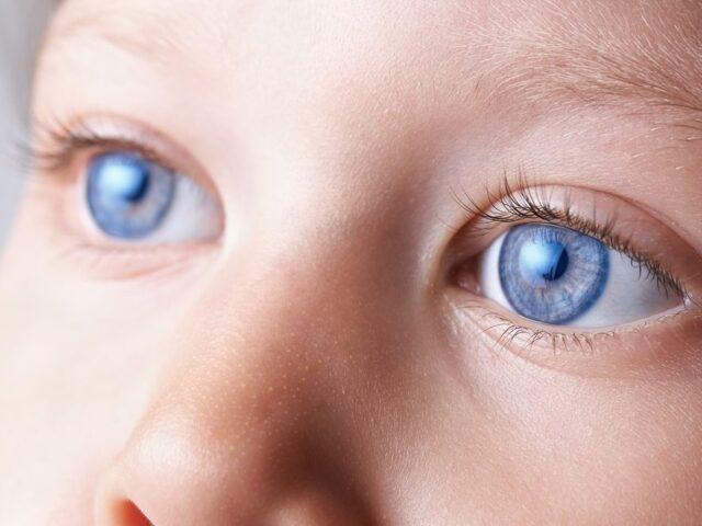 Особливості перебігу увеїту, пов'язаного із ювенільним ідіопатичним артритом у дітей