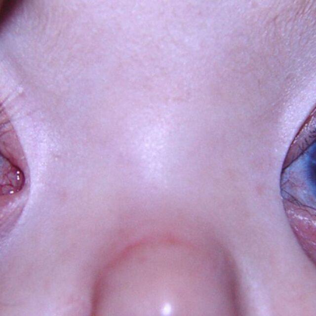 Коротко про інфекційний кератит у дітей: особливості діагностики та лікування