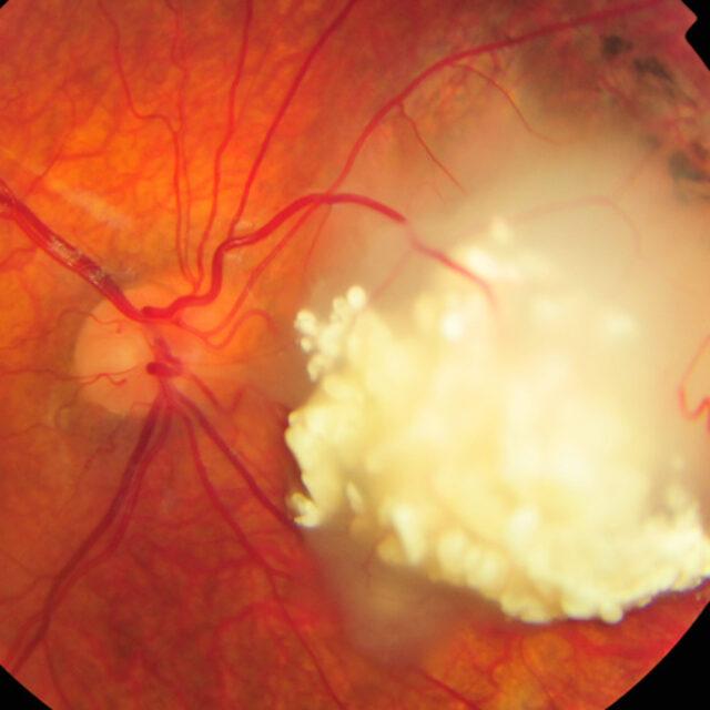 Потенціал біопсії рідини передньої камери ока для менеджменту ретинобластоми