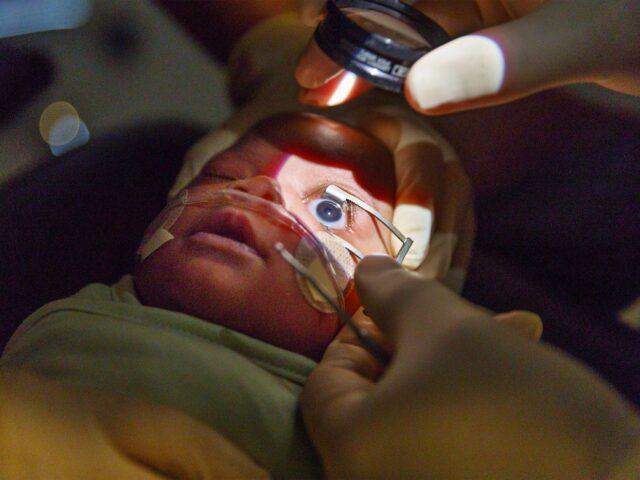 Чи є ручна ОКТ менш стресогенною для немовлят під час огляду з приводу ретинопатії недоношених?