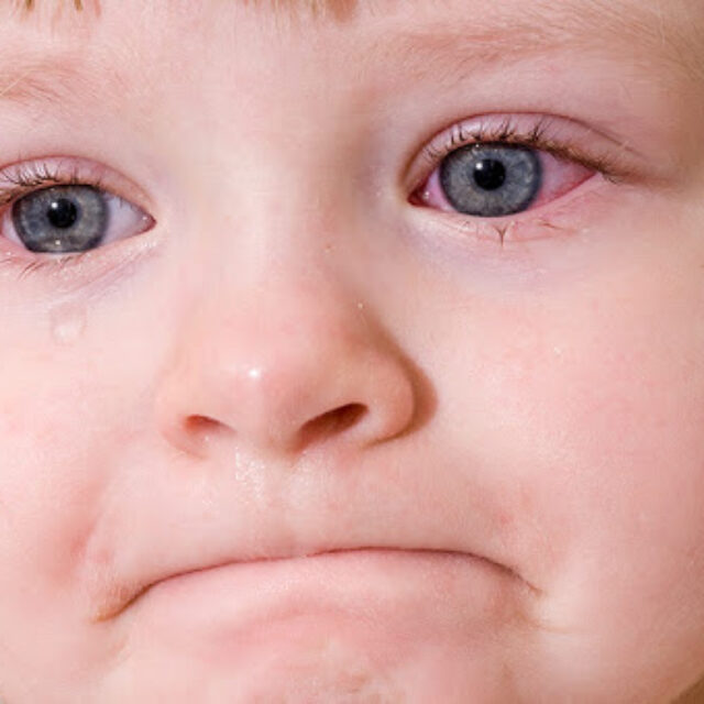 Як алергічний кон'юнктивіт впливає на якість життя дітей?